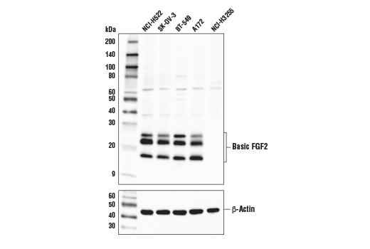 Western blot analysis of extracts from various cell lines using Basic FGF Antibody (upper) and β-Actin (D6A8) Rabbit mAb #8457 (lower).