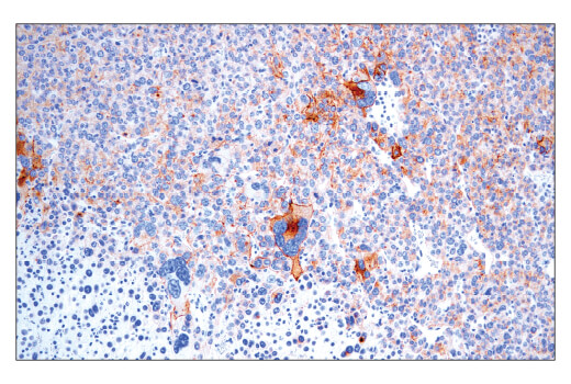 Immunohistochemical analysis of paraffin-embedded Renca syngeneic tumor using CD40 (E2Z7J) Rabbit mAb performed on the Leica<sup>®</sup> BOND™ Rx.