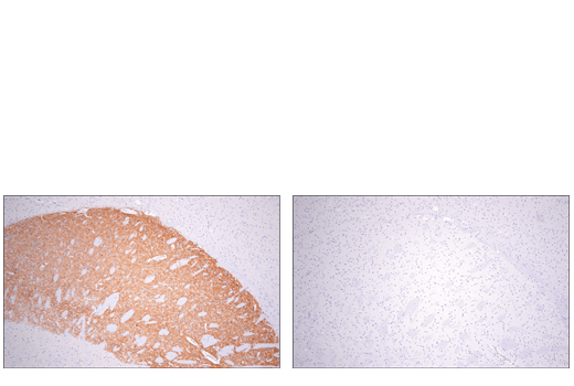 Immunohistochemical analysis of paraffin-embedded mouse striatum using Adora2a/Adenosine Receptor A2a (E5I8X) XP<sup>®</sup> Rabbit mAb (Rodent Specific) (left) compared to concentration matched Rabbit (DA1E) mAb IgG XP<sup>®</sup> Isotype Control #3900 (right).