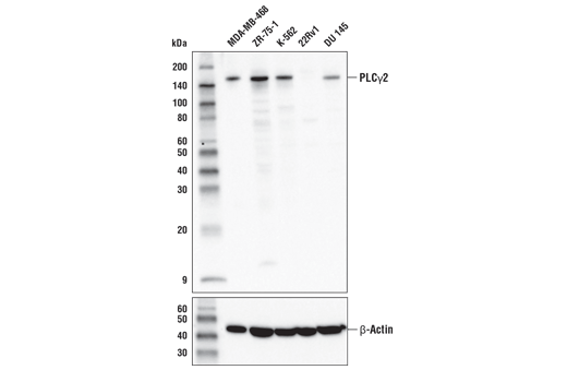 Western blot analysis of extracts from various cell lines using PLCγ2 (E5U4T) Rabbit mAb (upper) or β-Actin (D6A8) Rabbit mAb #8457 (lower).