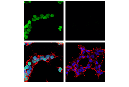 Confocal immunofluorescent analysis of NCCIT cells (left, positive) and 293T cells (right, negative) using PRDM14 (E1D5S) XP<sup>®</sup> Rabbit mAb (green). Actin filaments were labeled with DyLight™ 554 Phalloidin #13054 (red). Samples were mounted in ProLong<sup>®</sup> Gold Antifade Reagent with DAPI #8961 (blue).