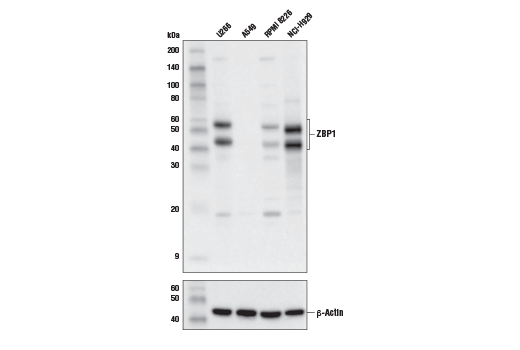 Western blot analysis of extracts from various cell lines using ZBP1 Antibody (upper) or β-Actin (D6A8) Rabbit mAb #8457 (lower). Based on RNA-seq data, ZBP1 is predicted not to be expressed in A549 cells.