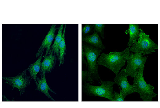 Confocal immunofluorescent analysis of C2C12 cells, treated with LY294002 #9901 (50 μM, 2 hr; left) or insulin (100 nM, 20 min; right), using Akt (pan) (E7J2C) Mouse mAb (green). Blue = DAPI #4083 (fluorescent DNA dye). Note the translocation of Akt to ruffling membranes following stimulation.