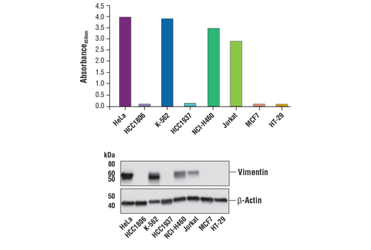 Figure 2. Vimentin protein is expressed in a variety of human cell lines but absent in others, as detected by using the FastScan™ Total Vimentin ELISA Kit #87105. The absorbance readings at 450 nm are shown in the upper figure, while the corresponding western blots using vimentin and β-actin antibodies are shown in the bottom figure.