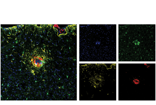 Confocal immunofluorescent analysis of mouse Tg2576 brain, which overexpresses mutant human APP695. Sections were labeled with ASC/TMS1 (D2W8U) Rabbit mAb (Mouse Specific) (Alexa Fluor<sup>®</sup> 488 Conjugate) #17507 (green), GFAP (GA5) Mouse mAb (Alexa Fluor<sup>®</sup> 555 Conjugate) #3656 (yellow), and β-amyloid (D3D2N) Mouse mAb (Alexa Fluor<sup>®</sup> 647) (red). Samples were mounted in ProLong<sup>®</sup> Gold Antifade Reagent with DAPI #8961 (blue).