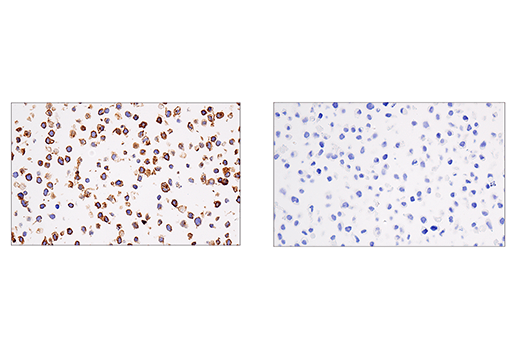 Immunohistochemical analysis of paraffin-embedded IM-9 cell pellet (left, positive) or HeLa cell pellet (right, negative) using CRACC/SLAMF7/CD319 (E5C4M) Rabbit mAb.