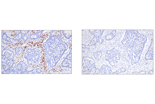 Immunohistochemical analysis of paraffin-embedded human colon carcinoma using CRACC/SLAMF7/CD319 (E5C4M) Rabbit mAb (left) compared to concentration matched Rabbit (DA1E) mAb IgG XP<sup>®</sup> Isotype Control #3900 (right).