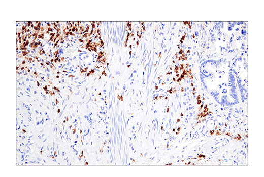 Monoclonal Antibody Ihc-Leica® bond™ Natural Killer Cell Activation