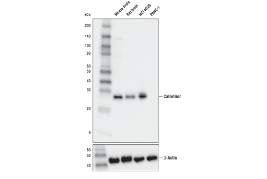 Western blot analysis of extracts from various tissues and cell lines using Calretinin (E9R6G) Rabbit mAb (upper) and β-Actin (D6A8) Rabbit mAb #8457 (lower).