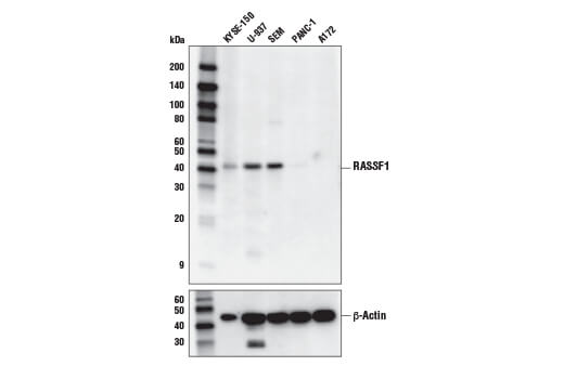 Monoclonal Antibody - RASSF1 (E7T6O) Rabbit mAb - Western Blotting, UniProt ID Q9NS23, Entrez ID 11186 #86026, Apoptosis