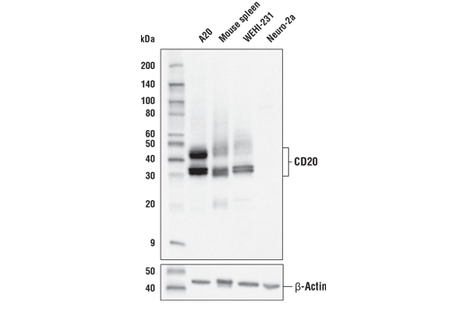Western blot analysis of extracts from various cell lines and tissue using CD20 Antibody (upper) and β-Actin (D6A8) Rabbit mAb #8457 (lower).