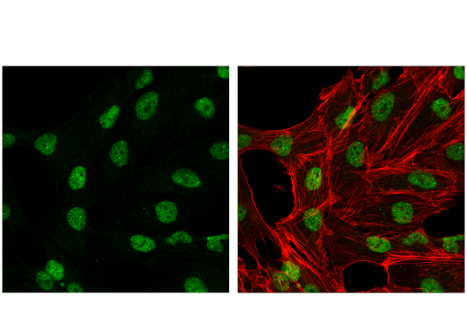 Confocal immunofluorescent analysis of Caki-1 cells using CBX4 (E6L7X) Rabbit mAb (green). Actin filaments were labeled with DyLight™ 554 Phalloidin #13054 (red). Samples were mounted in ProLong<sup>®</sup> Gold Antifade Reagent with DAPI #8961 (blue).