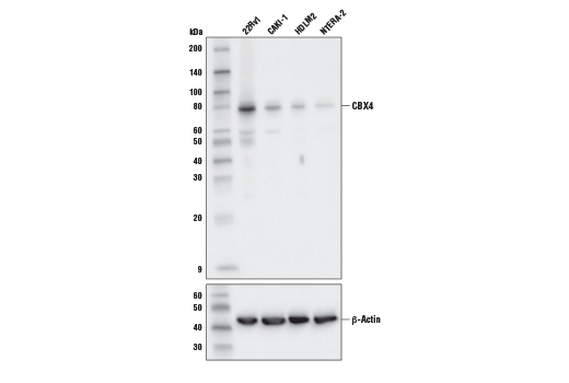 Western blot analysis of extracts from various cell lines using CBX4 (E6L7X) Rabbit mAb. As expected, HDLM2 and NTERA-2 cells do not highly express CBX4.