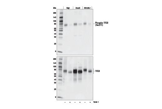 Monoclonal Antibody - Phospho-TFEB (Ser211) (E9S8N) Rabbit mAb, UniProt ID P19484, Entrez ID 7942 #37681