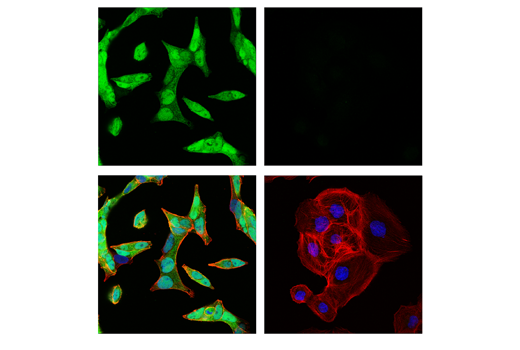 Confocal immunofluorescent analysis of LNCaP cells (left, positive) and DU 145 cells (right, negative) using</p><p>Androgen Receptor (E3S4N) Rabbit mAb (Carboxy-terminal Antigen) (green). Actin filaments were labeled with DyLight™ 554 Phalloidin #13054 (red). Samples were mounted in ProLong<sup>®</sup> Gold Antifade Reagent with DAPI #8961 (blue).