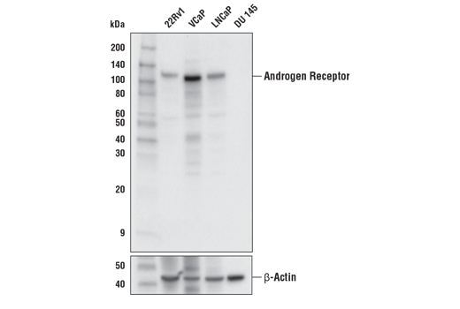 Western blot analysis of extracts from various cell lines using Androgen Receptor (E3S4N) Rabbit mAb (Carboxy-terminal Antigen) (upper) or β-Actin (D6A8) Rabbit mAb #8457 (lower). As expected, DU 145 cells are negative for Androgen Receptor expression.