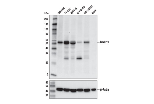 Western blot analysis of extracts from various cell lines using MMP-1 (E9S9N) Rabbit mAb (upper) and β-Actin (D6A8) Rabbit mAb #8457 (lower).