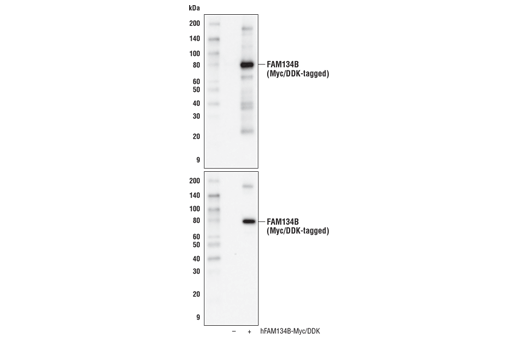 Western blot analysis of extracts from 293T cells, mock transfected (-) or transfected with a construct expressing Myc/DDK-tagged full-length human FAM134B (hFAM134B-Myc/DDK; +), using FAM134B Antibody (upper) or Myc-Tag (71D10) Rabbit mAb #2278 (lower).