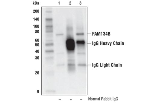 Polyclonal Antibody - FAM134B Antibody - Immunoprecipitation, Western Blotting, UniProt ID Q9H6L5, Entrez ID 54463 #61011, Fam134b