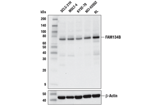 Western blot analysis of extracts from various cell lines using FAM134B Antibody (upper) or β-Actin (D6A8) Rabbit mAb #8457 (lower).