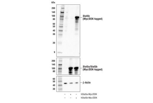 Western blot analysis of extracts from 293T cells, mock transfected (-) or transfected with a construct expressing Myc/DDK-tagged full-length human Stat5a protein (hStat5a-Myc/DDK; +) or a construct expressing Myc/DDK-tagged full-length human Stat5b protein (hStat5b-Myc/DDK; +), using Stat5b Antibody (upper), Myc-Tag (71D10) Rabbit mAb#2278 (middle), and β-Actin (D6A8) Rabbit mAb #8457 (lower).