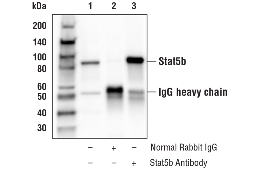 Immunoprecipitation of Stat5b from Raji cell extracts. Lane 1 is 10% input, lane 2 is Normal Rabbit IgG #2729, and lane 3 is Stat5b Antibody. Western blot analysis was performed using Stat5b Antibody.