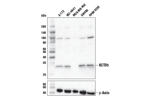Polyclonal Antibody - KCTD5 Antibody - Immunoprecipitation, Western Blotting, UniProt ID Q9NXV2, Entrez ID 54442 #94396, Kctd5