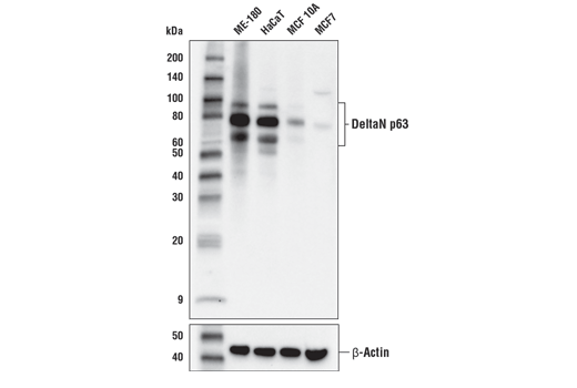 Western blot analysis of extracts from various cell lines using DeltaN p63 (E6Q3O) Rabbit mAb (upper) or β-Actin (D6A8) Rabbit mAb #8457 (lower).