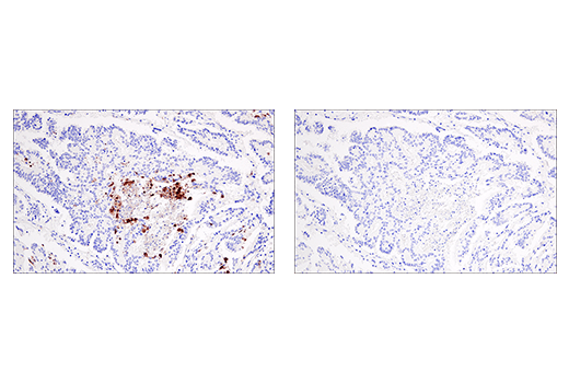 Immunohistochemical analysis of paraffin-embedded human colon carcinoma using Cleaved Gasdermin D (Asp275) (E7H9G) Rabbit mAb in the presence of non-cleaved Gasdermin D peptide (left) or Asp275 cleavage-specific Gasdermin D peptide (right).