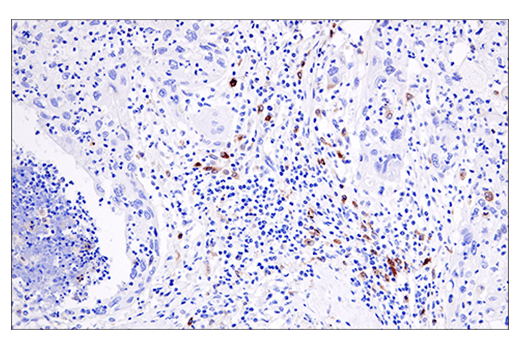 Immunohistochemical analysis of paraffin-embedded human squamous cell lung carcinoma using Cleaved Gasdermin D (Asp275) (E7H9G) Rabbit mAb.