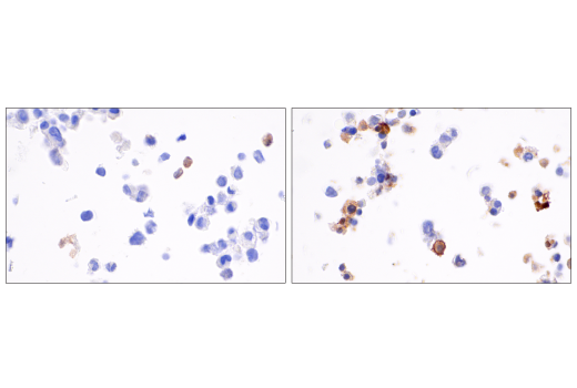 Image 42: Human Reactive Cell Death and Autophagy Antibody Sampler Kit