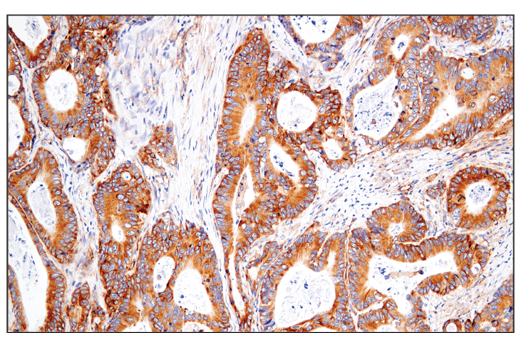 Immunohistochemical analysis of paraffin-embedded human colon carcinoma using VAMP3 (D9S6K) XP<sup>®</sup> Rabbit mAb.