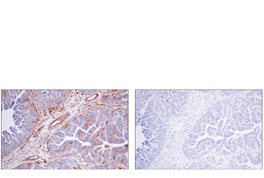 Immunohistochemical analysis of paraffin-embedded human serous papillary carcinoma of the ovary using VAMP3 (D9S6K) XP<sup>®</sup> Rabbit mAb (left) compared to concentration matched Rabbit (DA1E) mAb IgG XP® Isotype Control #3900 (right).