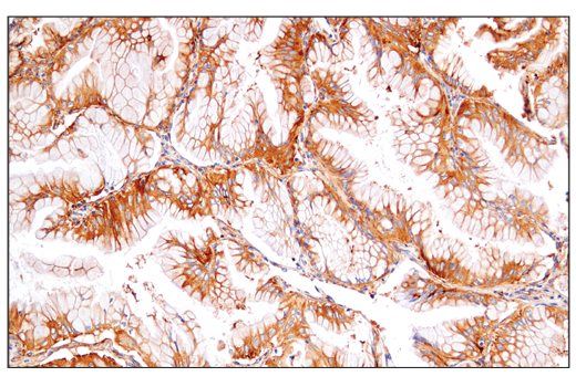 Immunohistochemical analysis of paraffin-embedded human lung adenocarcinoma using VAMP3 (D9S6K) XP<sup>®</sup> Rabbit mAb.