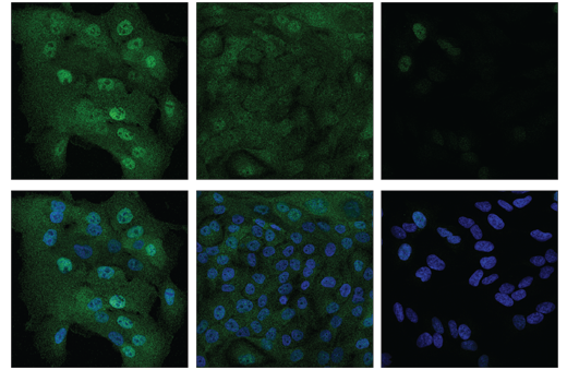 Confocal immunofluorescent analysis of MCF 10A cells (high-expressing) at low (left) and high-confluence (middle) versus SH-SY5Y cells (right, low-expressing) using TAZ (E8E9G) Rabbit mAb (green). Nuclei are labeled with DAPI #4083 (blue). Note that decreased nuclear localization of TAZ protein is seen in high-confluence MCF 10A cells.