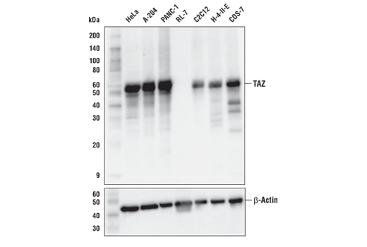 Western blot analysis of extracts from various cell lines using TAZ (E8E9G) Rabbit mAb (upper) and β-Actin (D6A8) Rabbit mAb #8457 (lower). Expression levels of TAZ among cell lines are consistent with expectations based on publicly available bioinformatic databases.