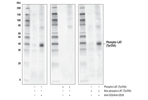 Western blot analysis of extracts from serum-starved Jurkat cells, treated with isotype control (-) or with cross-linked anti-CD3 plus anti-CD28 (+; 10 ug/mL each, 5 min), using Phospho-LAT (Tyr255) Antibody. The phospho-specificity of the antibody was verified by pre-incubating the antibody with no peptide (left), LAT (Tyr255) phosphopeptide (center), and LAT (Tyr255) non-phosphopeptide (right).