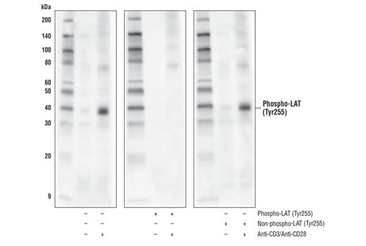 Polyclonal Antibody - Phospho-LAT (Tyr255) Antibody - Immunoprecipitation, Western Blotting, UniProt ID O43561, Entrez ID 27040 #45170, Lat