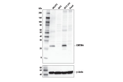 Western blot analysis of extracts from various cell lines using CMTM4 Antibody (upper) and β-Actin (D6A8) Rabbit mAb #8457 (lower).