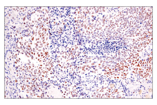 Immunohistochemical analysis of paraffin-embedded human lung adenocarcinoma using BCL6 (E5I8I) Rabbit mAb performed on the Leica<sup>®</sup> BOND™ Rx.
