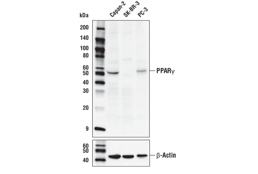 Western blot analysis of extracts from Capan-2, SK-BR-3, and PC-3 cells using PPARγ (D8I3Y) Mouse mAb (upper) or β-Actin (D6A8) Rabbit mAb #8457 (lower).