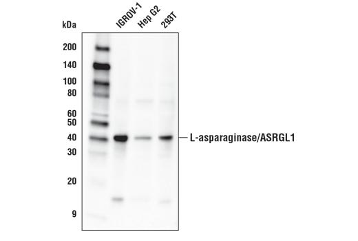 Polyclonal Antibody - L-asparaginase/ASRGL1 Antibody - Western Blotting, UniProt ID Q7L266, Entrez ID 80150 #65552, Asrgl1