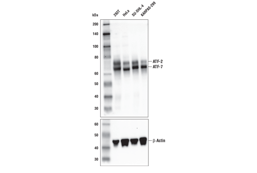 Western blot analysis of extracts from various cell lines using ATF-2/ATF-7 (A9G1M) Rabbit mAb (upper) or β-Actin (D8A6) Rabbit mAb #8457 (lower). KARPAS cell line source: Dr. Abraham Karpas at the University of Cambridge.