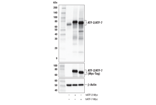 Western blot analysis of extracts from HeLa cells, mock transfected (-) or transfected with a construct expressing Myc-tagged full-length human ATF-2 protein (hATF-2-Myc; +) or a construct expressing Myc-tagged full-length human ATF-7 protein (hATF-7-Myc; +), using ATF-2/ATF-7 (A9G1M) Rabbit mAb (upper), Myc-Tag (71D10) Rabbit mAb #2278 (middle), and β-Actin (D6A8) Rabbit mAb #8457 (lower).