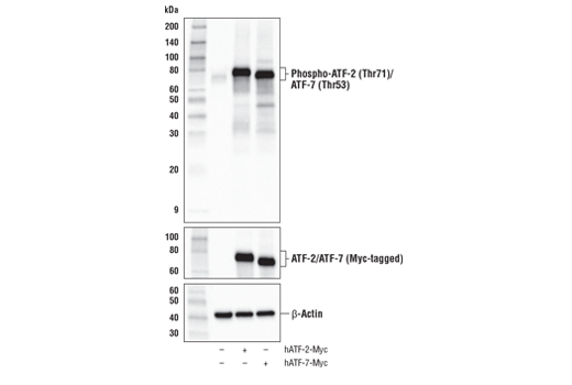Western blot analysis of extracts from HeLa cells, mock transfected (-) or transfected with a construct expressing Myc-tagged full-length human ATF-2 protein (hATF-2-Myc; +) or a construct expressing Myc-tagged full-length human ATF-7 protein (hATF-7-Myc; +), using Phospho-ATF-2 (Thr71)/ATF-7 (Thr53) (A8J7P) Rabbit mAb (upper), Myc-Tag (71D10) Rabbit mAb #2278 (middle), and β-Actin (D6A8) Rabbit mAb #8457 (lower).