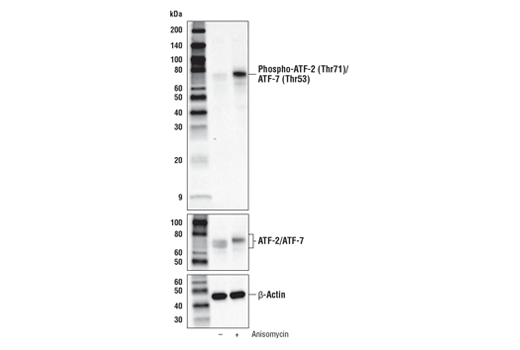 Western blot analysis of extracts from NIH/3T3 cells, untreated (-) or treated with Anisomycin (25 μg/ml, 30 min; +), using Phospho-ATF-2 (Thr71)/ATF-7 (Thr53) (A8J7P) Rabbit mAb (upper), ATF-2/ATF-7 (A9G1M) Rabbit mAb #82870 (middle), or β-Actin (D6A8) Rabbit mAb #8457 (lower)