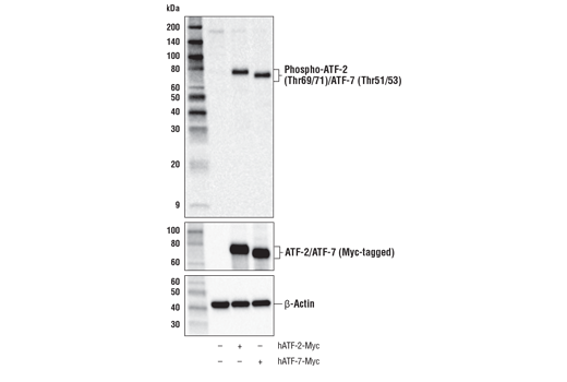 Western blot analysis of extracts from HeLa cells, mock transfected (-) or transfected with a construct expressing Myc-tagged full-length human ATF-2 protein (hATF-2-Myc; +) or a construct expressing Myc-tagged full-length human ATF-7 protein (hATF-7-Myc; +), using Phospho-ATF-2 (Thr69/71)/ATF-7 (Thr51/53) Antibody (upper), Myc-Tag (71D10) Rabbit mAb #2278 (middle), and β-Actin (D6A8) Rabbit mAb #8457 (lower).