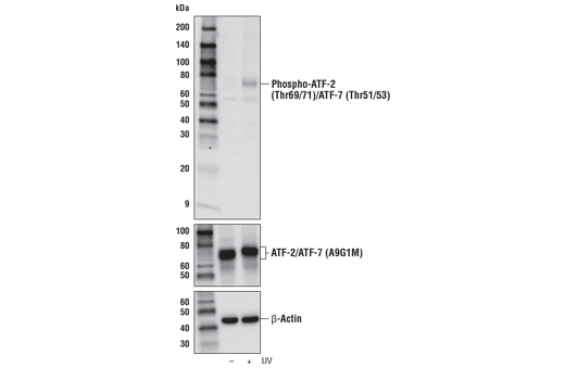 Western blot analysis of extracts from 293T cells, untreated (-) or UV-treated (50 mJ/cm<sup>2</sup>, 20 min recovery; +), using Phospho-ATF-2 (Thr69/71)/ATF-7 (Thr51/53) Antibody (upper), ATF-2/ATF-7 (A9G1M) Rabbit mAb #82870 (middle), or β-Actin (D6A8) Rabbit mAb #8457 (lower)