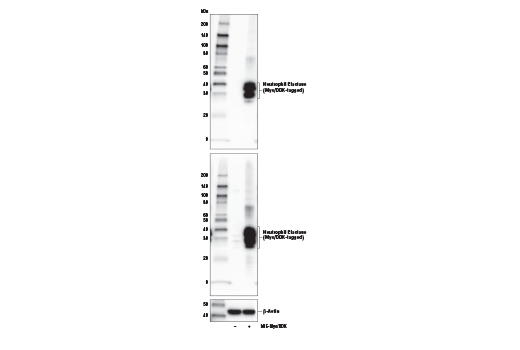 Western blot analysis of extracts from 293T cells, mock transfected (-) or transfected with a construct expressing Myc/DDK-tagged full-length human neutrophil elastase protein (hNE-Myc/DDK; +), using Neutrophil Elastase (E9C9L) XP<sup>®</sup> Rabbit mAb (upper), DYKDDDDK Tag Antibody #2368 (middle), and β-Actin (D6A8) Rabbit mAb #8457 (lower).