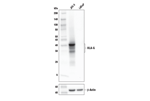 Western blot analysis of extracts from JEG-3 and LNCaP cells using HLA-G (E8N9C) XP<sup>®</sup> Rabbit mAb (upper) and β-Actin (D6A8) Rabbit mAb #8457 (lower).